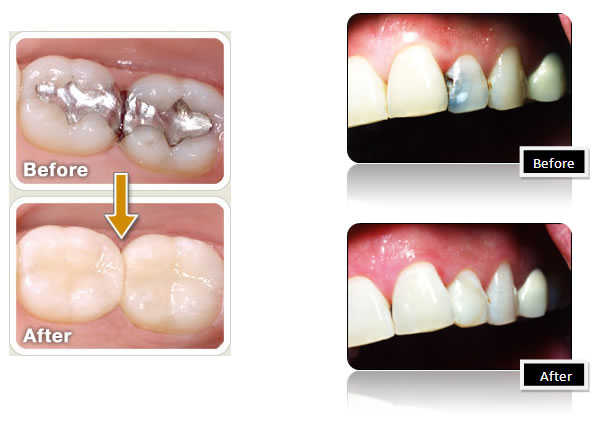 fillings before and after